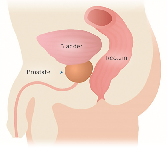The close proximity of the rectum and prostate in men
