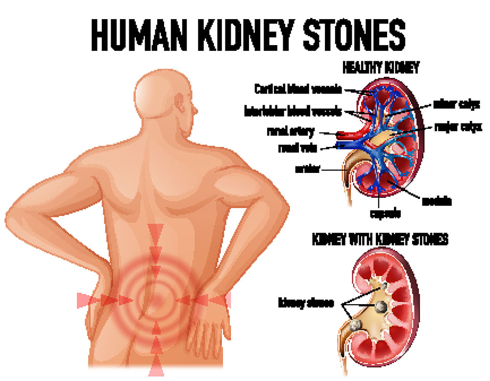 All about kidney stones in the human body.